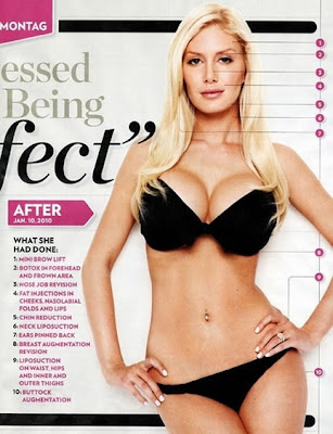 heidi montag surgery. I love Heidi Montag as much as
