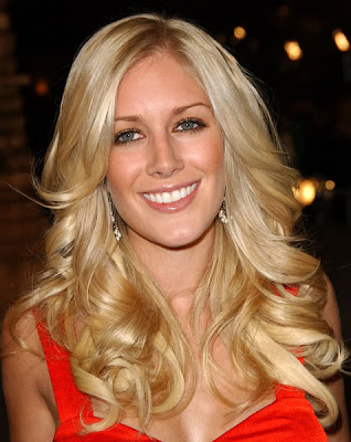 pictures of heidi montag scars. heidi montag