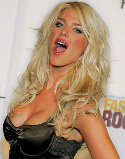 Celebrity implant sizes