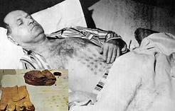 تعرض ميكالاك لحروق شديدة على صدره ويديه بعد أن لمس الطبق الطائر وأثناء إقلاعه