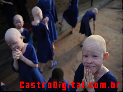 IMAGEM - Acampamento albino