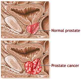 Images Prostate Cancer