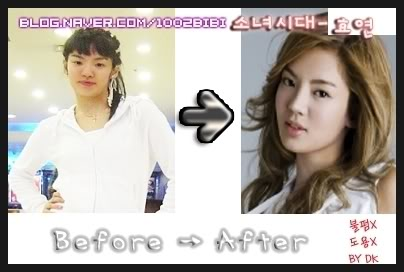 SNSD   Before - After Plastic SurgeryYuri Snsd Before And After