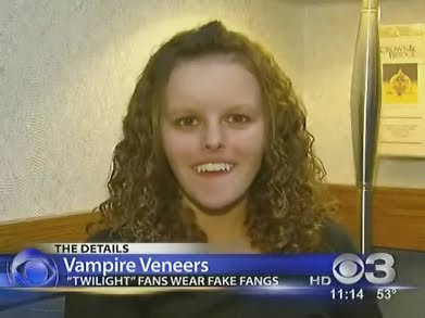 vampire+veneers+twilight+new+moon Vampire Veneers?
