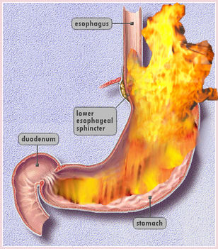 Heartburn: An Explanation