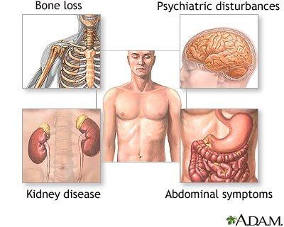 Parathyroid Hormone Pth