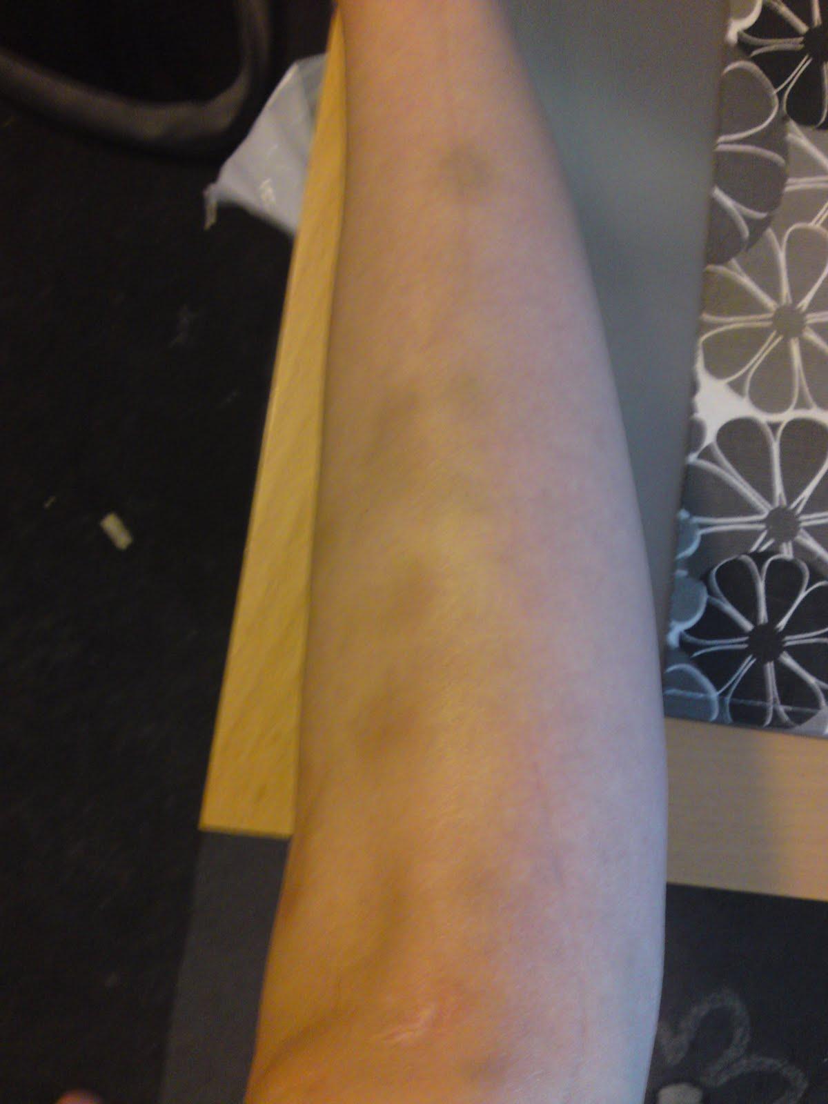 oförklarliga blåmärken på benen