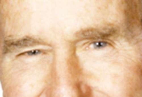 Máscara de sombras abaixo dos olhos de respostas de batatas