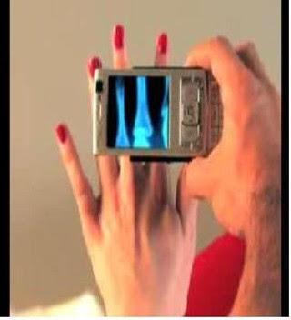 Rayos X Gratis para tu celular