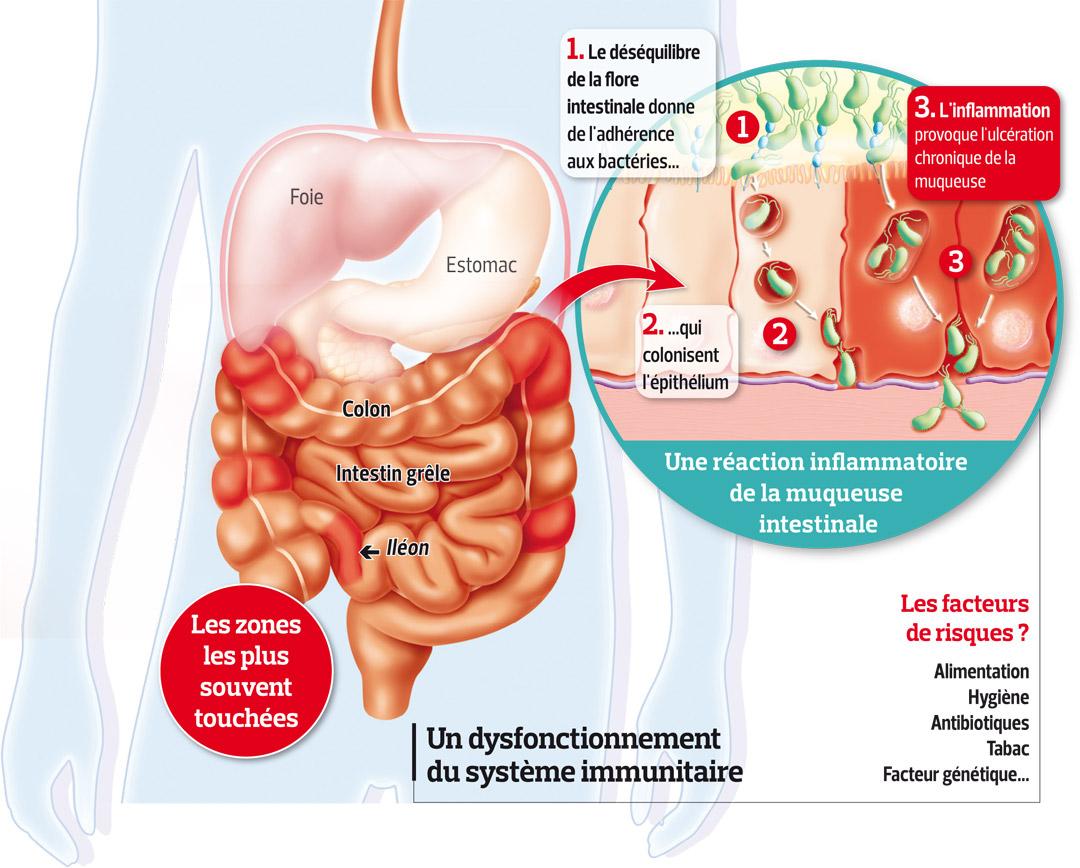 maladie-de-crohn: Quelle est la cause de la maladie de Crohn