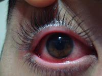 olho vermelho, coceira nos olhos