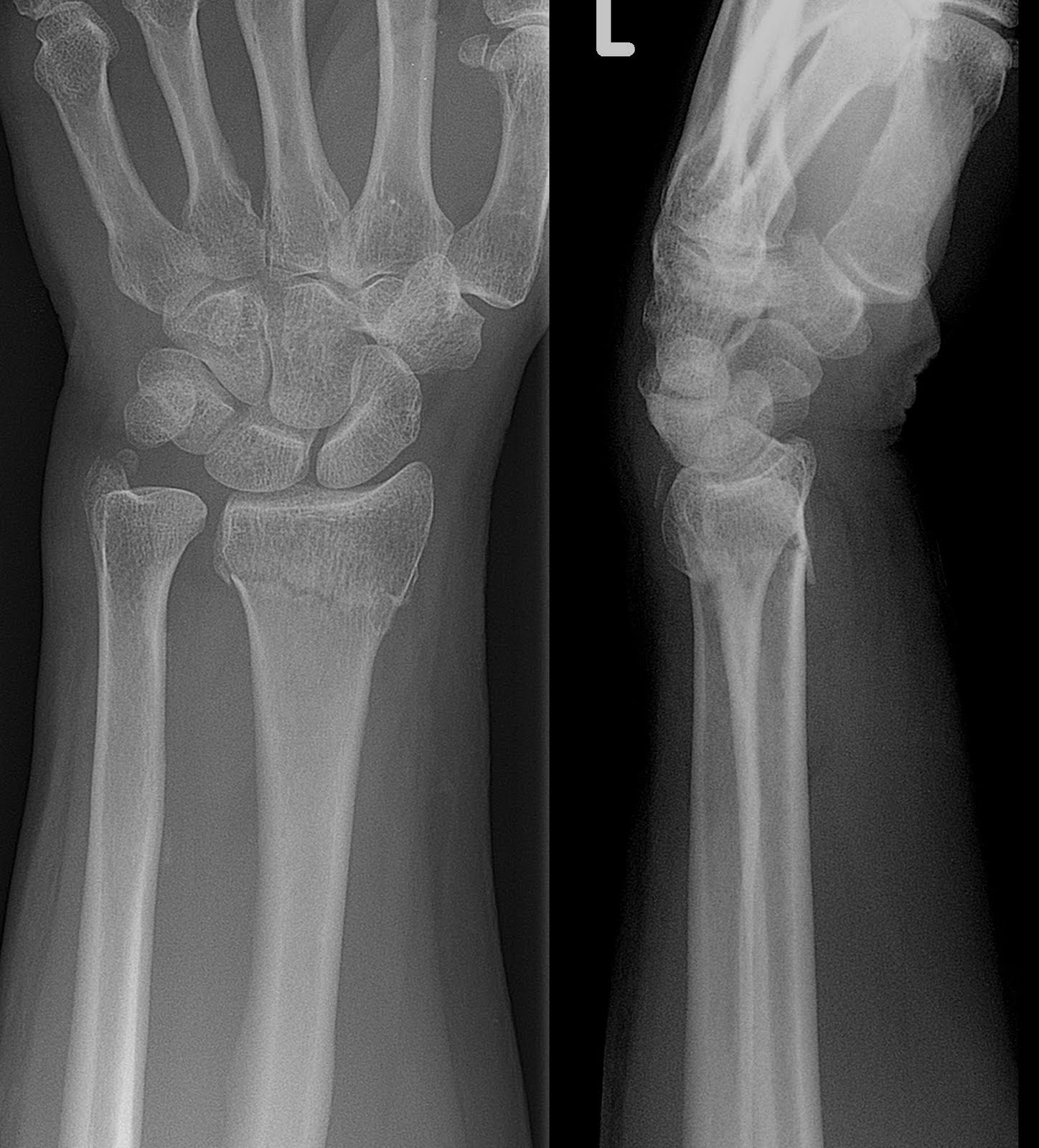 Colles Fracture-2.bp.blogspot.com