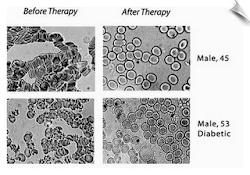 Sampel Darah 25 minit , Sebelum & Selepas Buat Laser