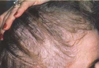 La composición del champú la corteza contra la caída de los cabello