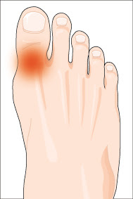 gout Gout Treatment