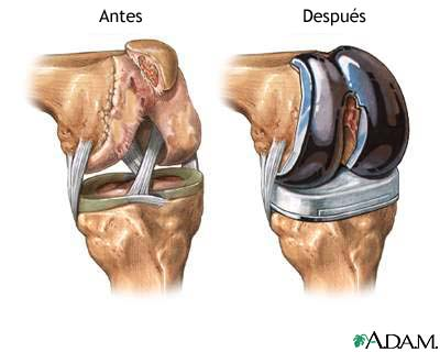 Best Orthopedic Surgeons In Palm Beach County Torn Acl