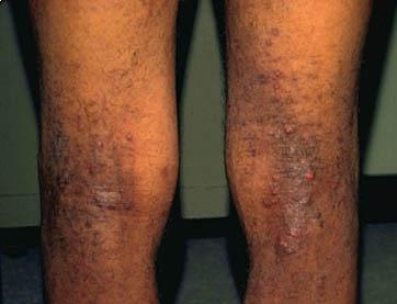 Dermatology dermatology for Tattoos and eczema