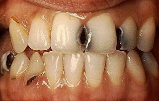 Cavities Picture