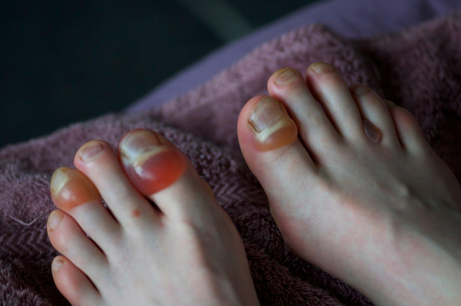 Essie Millionails Natural Nail Strengthener Reviews