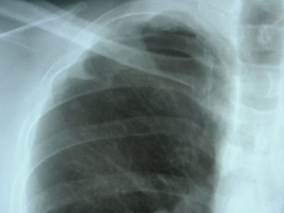 Pleural Thickening Right Apex Lung http://nexradiology.blogspot.com/2009/05/pleural-thickening.html