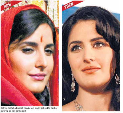 Katrina Kaif before and after lip surgery
