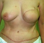 My Fabulous Boobies - a breast cancer patient after a TRAM flap procedure