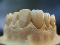 Lucrare dentara-vestibular