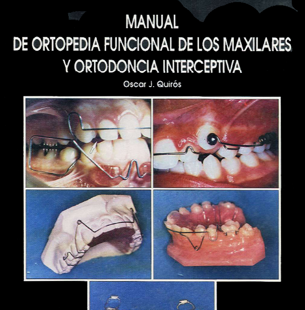 Curso online de ortodoncia manual de ortopedia funcional for W de porter ortodoncia