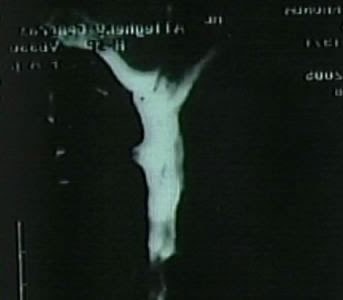 Jesus spotted in an MRI Scan