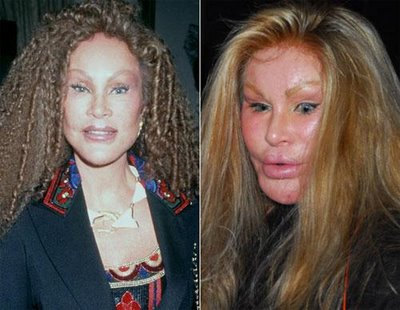 awful plastic surgery. Plastic Surgery