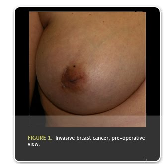 Breast Cancer Treatment Choices