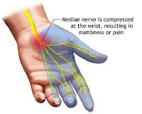 carpal tunnel syndrome 47820