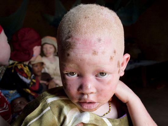 Niños albinos de padres negros ? Todo sobre el tema !