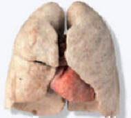 Easy Solution to Repair Lungs Damaged by Smoking