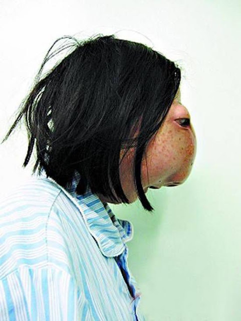 33333333333 Συγκλονιστικό:Γυναίκα χωρίς πρόσωπο!!!