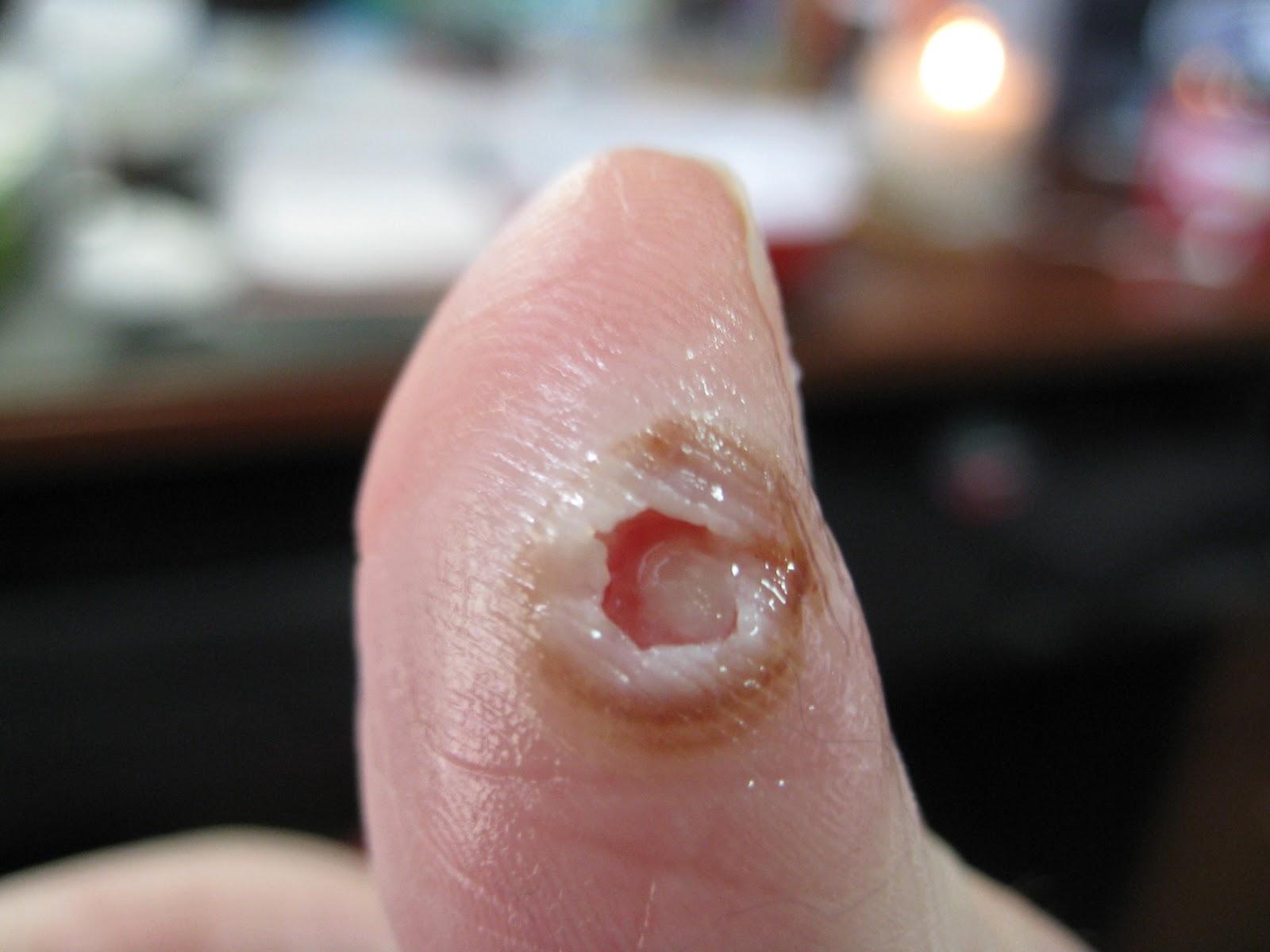 infektion i tummen