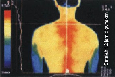 biofir kalung kesehatan