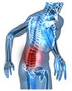 Healthbase - Causes of Back Pain