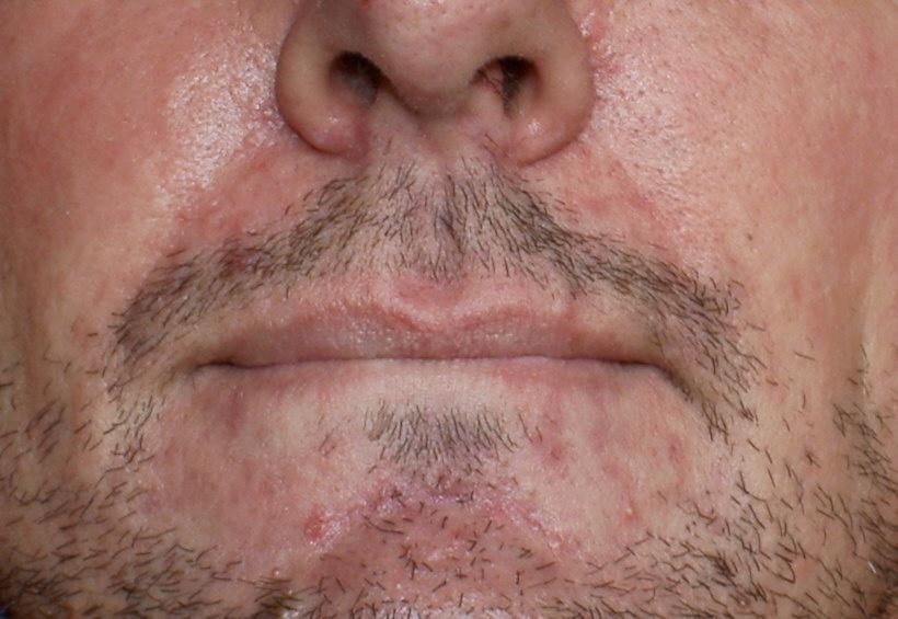 I pori di faccia sono fortemente martellati