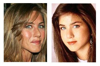 Jennifer Aniston nose job before and after? (image hosted by http://plasticsurgerybeforeandafter.blogspot.com)