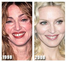 Madonna before and after plastic surgery 1998 - 2008 (image hosted by  plasticsurgerybeforeandafter.blogspot.com)