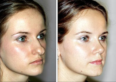 Rhinoplasty Photos