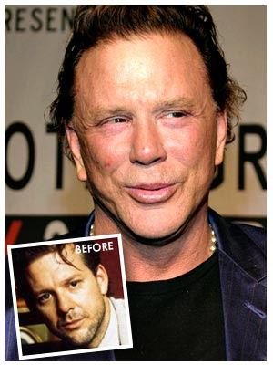 Mickey Rourke Bad Nose Jobs