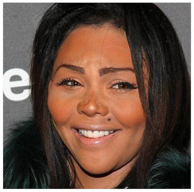 Lil Kim Rhinoplasty Gone Wrong
