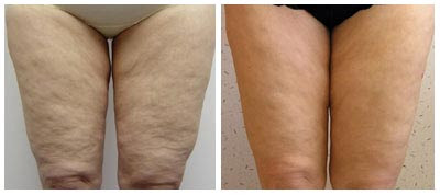 Mesotherapy Photos