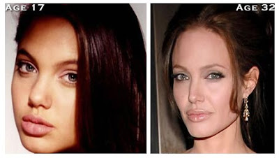 Angelina Jolie Nose Job