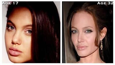 Angelina Jolie Nose Job