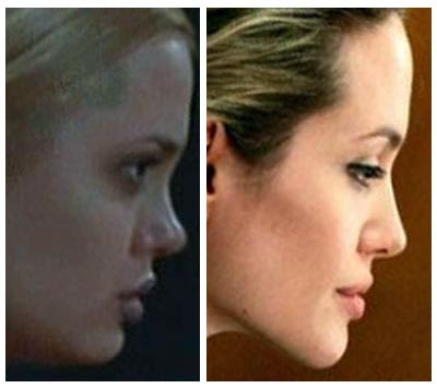 Angelina Jolie Rhinoplasty. If there is any one part of Angelina's body that