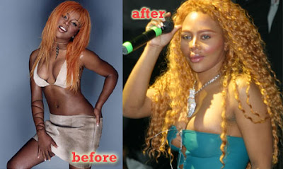plastic surgery korean lil kim before after lil kim before and after 400x239