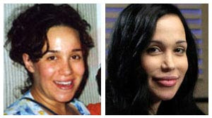 Nadya Suleman Before And After Plastic Surgery